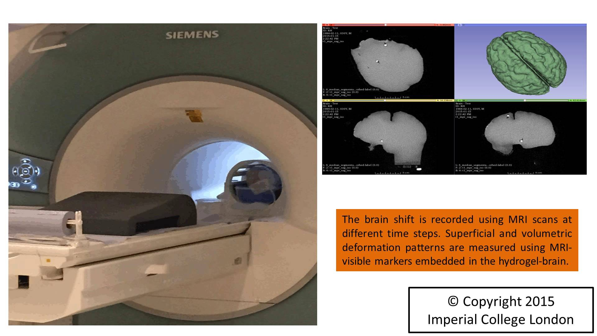MRI machine with graphics of brain imaging